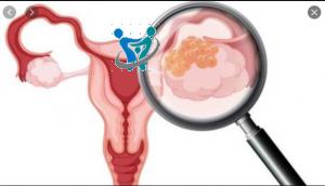 هل استئصال الرحم يؤثر على العلاقه الزوجيه