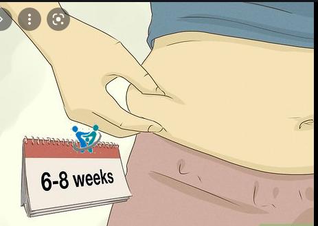 متي تعود البطن لطبيعتها بعد الولادة القيصرية؟